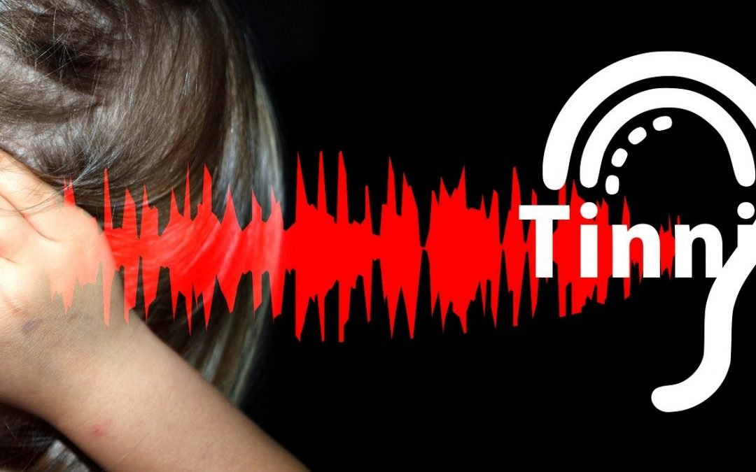 Tinnitus  – Can Physiotherapy Help?
