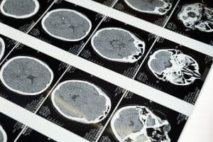 brain xray scan